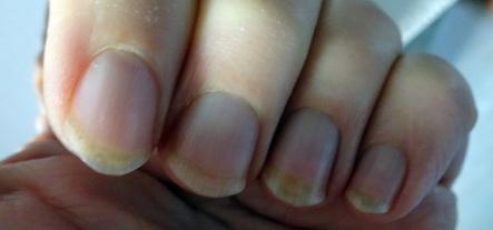 2401 Fingernägel 192